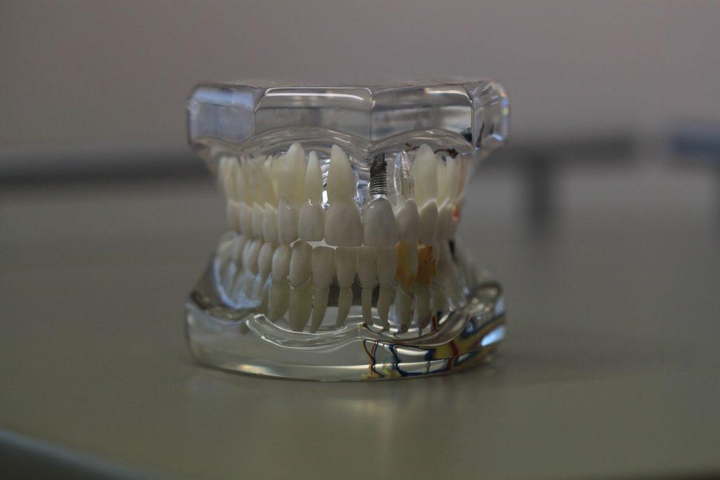 nettoyant pour dentiers